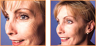 Cosmetic Injections: Botox